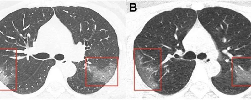 LungA-B_2020-04-24.jpg
